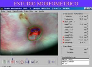 ESTUDIO MORFOMÉTRICO