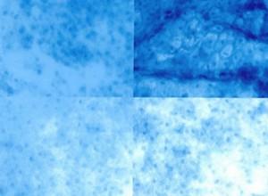MICROCOLPOHISTEROSCOPIA:CÉLULAS CERVICALES ANORMALES