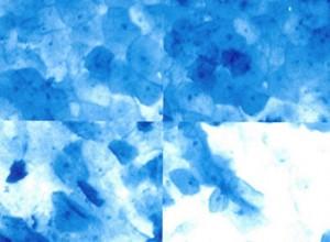 MICROCOLPOHISTEROSCOPIA: CÉLULAS CERVICALES NORMALES