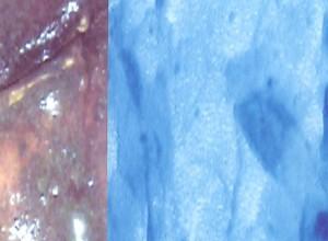 MICROVULVOSCOPÍA (MICROSCÓPICA) EN LABIOS MENORES